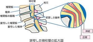脊柱管 腰痛 整体